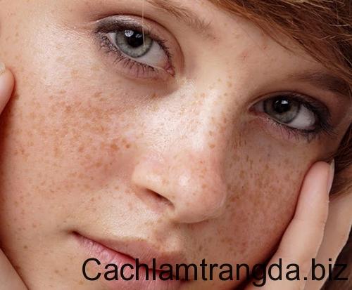 Trị tàn nhan hiệu quả với cách làm mặt nạ trị nám và dưỡng trắng da 1