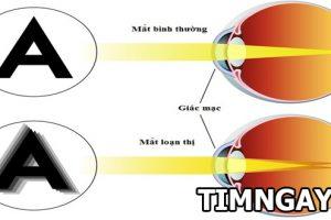 Loạn thị là gì? Dấu hiệu, nguyên nhân và phương pháp điều trị