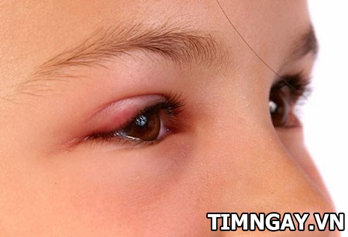 Những điều mẹ cần biết về bệnh đau mắt đỏ ở trẻ nhỏ 1