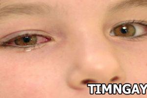 Những điều mẹ cần biết về bệnh đau mắt đỏ ở trẻ nhỏ