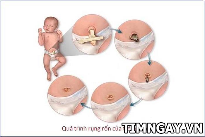 Rốn em bé rụng rồi mà chưa khô lại có mùi thối phải làm cách nào? 1