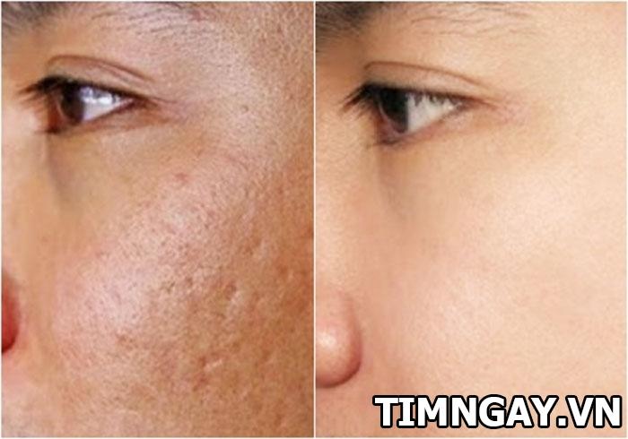 Hướng dẫn bạn bôi vitamin e lên mặt đúng cách trị vết thâm hiệu quả 2