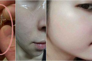 Hướng dẫn bạn bôi vitamin e lên mặt đúng cách trị vết thâm hiệu quả