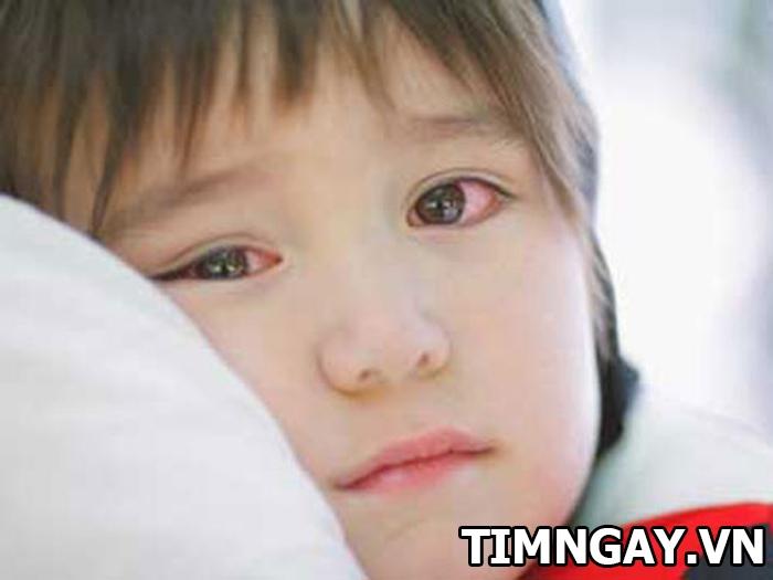 Biết đau mắt đỏ lây qua con đường nào để phòng tránh, chữa trị hiệu quả 1