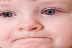 Biết đau mắt đỏ lây qua con đường nào để phòng tránh, chữa trị hiệu quả