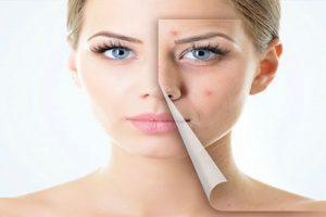 Dị ứng mỹ phẩm phải làm sao? Cách phòng tránh và điều trị nhanh nhất