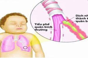 Nguyên nhân và cách điều trị bệnh viêm phổi ở trẻ em