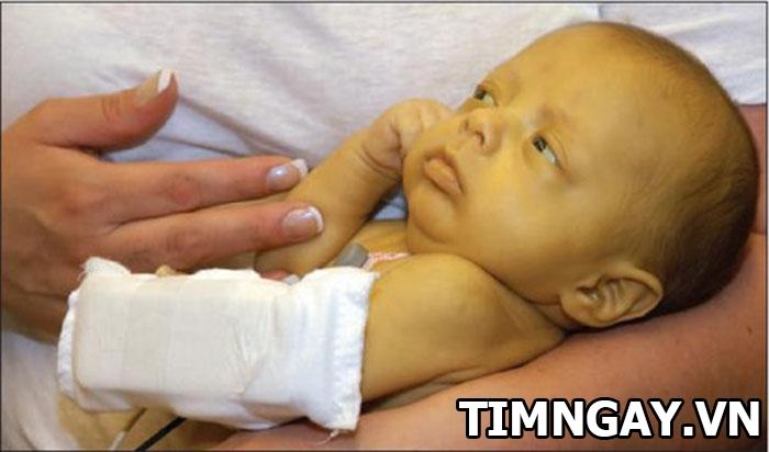 Trẻ sơ sinh bị vàng da có sao không? Điều trị như thế nào? 1