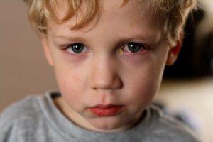 Hãy coi chừng nếu trẻ bị đau mắt đỏ có thể biến chứng khôn lường